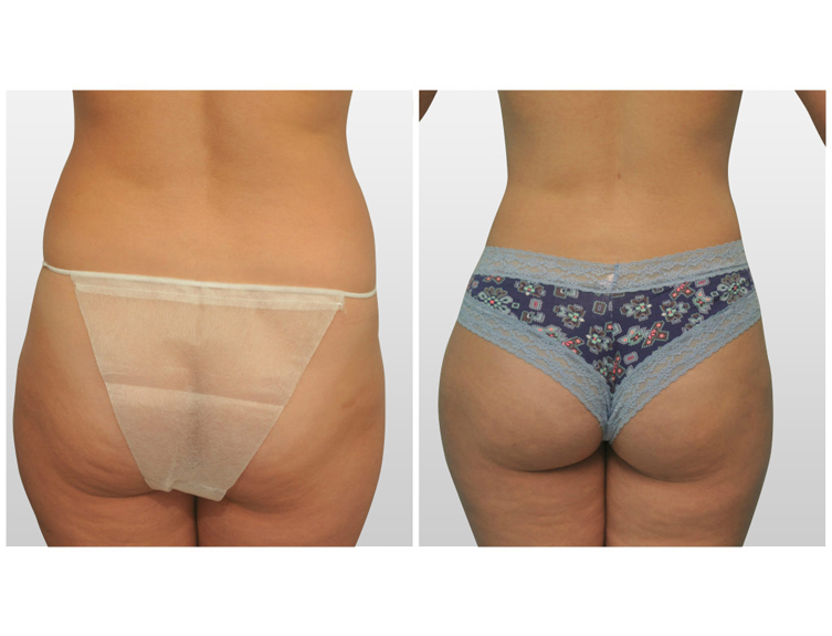 Brazilian Butt Lift in Miami | Butt Augmentation in Miami | Dr