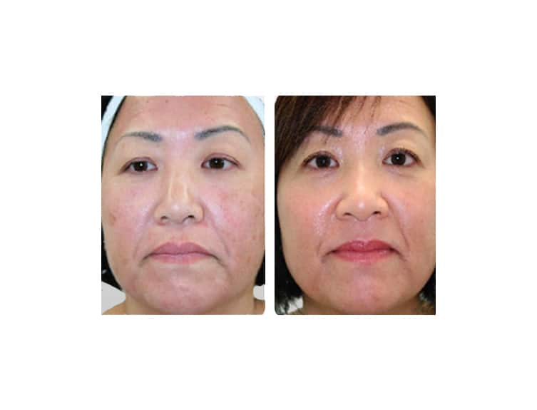 Sciton Laser Skin Resurfacing In Miami  Laser Treatments. Credit Card Consolidation Loan Rates. Sample Market Analysis Windows 7 Anti Malware. Antivirus Anti Spyware Best Cash Credit Cards. Postcard Printing Templates 2013 Kia Forte 5. Gas Mileage Ford Escape 2005. Pancreatic Cancer Treatments Buy Vps Cheap. How To Sell My Product Online. Customize Drawstring Bags Dow Futures Market