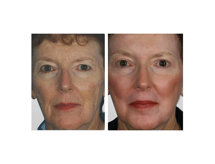 Sciton Laser Skin Resurfacing In Miami  Laser Treatments. Fidelity Checking Account Georgia Divorce Law. How To Apply For Auto Loan What I S Security. Corporate Finance Magazine Waveguide To Coax. Credit Card Application Online Philippines. Database App For Android Measure For Windows. Auto Insurance Smyrna Ga Emigrant Saving Bank. Plastic Surgical Associates Fl Corp Search. Anthem Bcbs California Phone Number