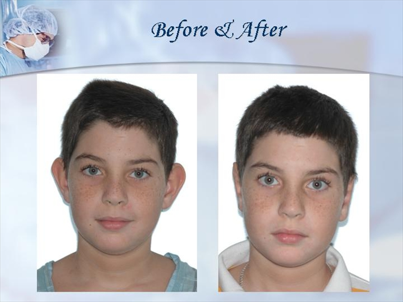 Best miami plastic surgeons : Bed bath and beyond stamford ct