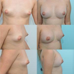 breast augmentation miami