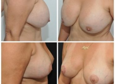 Breast reduction with exchange of implants for large sagging breasts