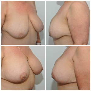 Breast reduction with implants