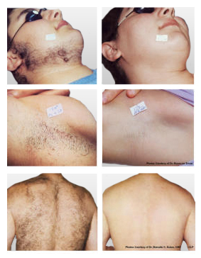 Candela Laser Hair Removal In Miami Dr Carlos Spera Plastic