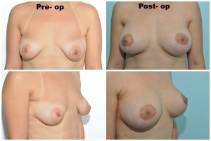Circumareolar Mastopexy Combined with Abdominoplasty & Liposuction