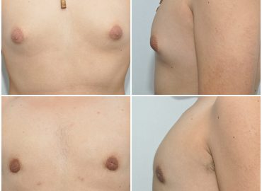 Enlargement of the breasts in males (Gynecomastia)