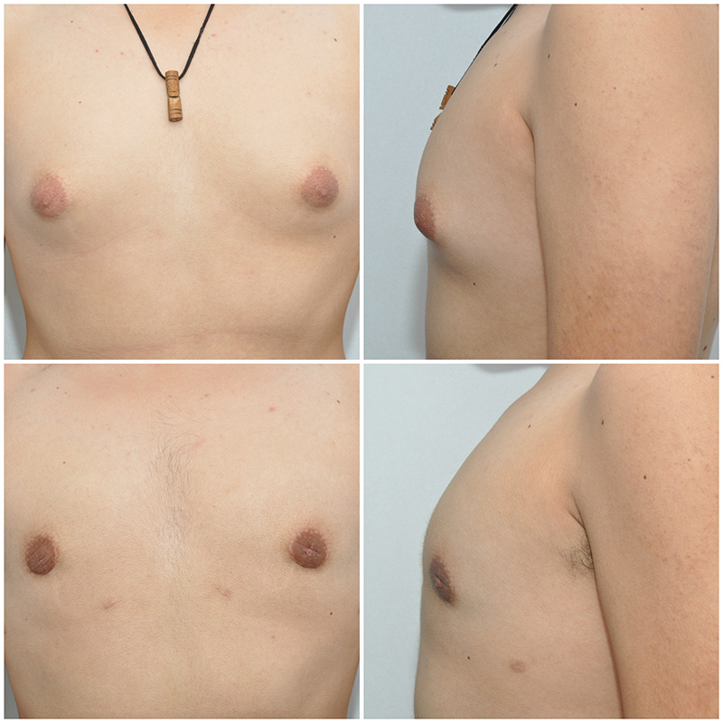 enlargement-of-the-breasts-in-males-gynecomastia