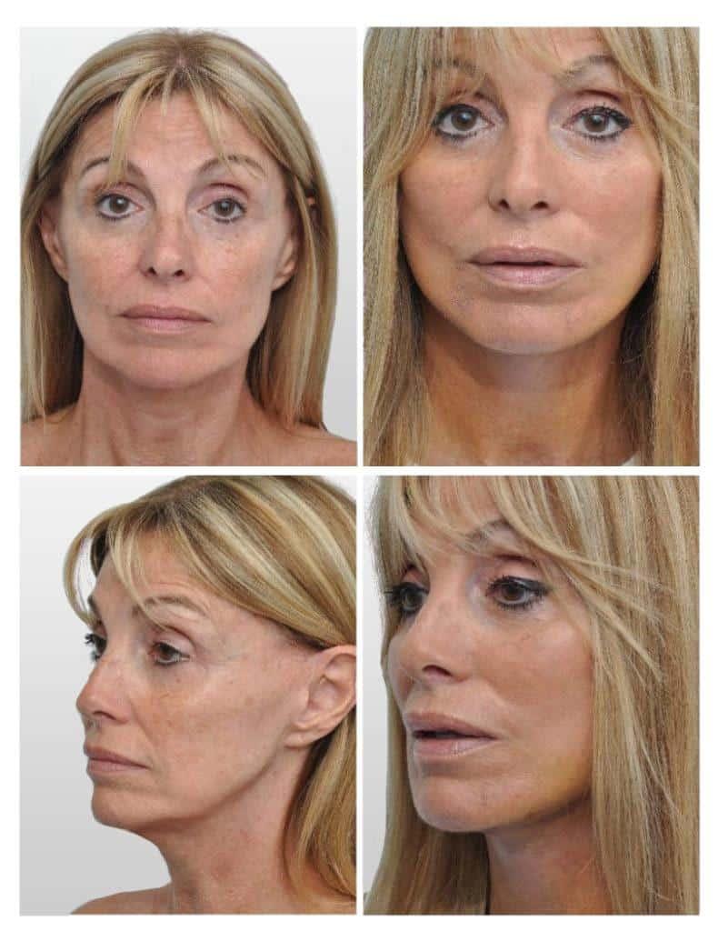 Face Lift In Miami Rhytidectomy In Miami Plastic