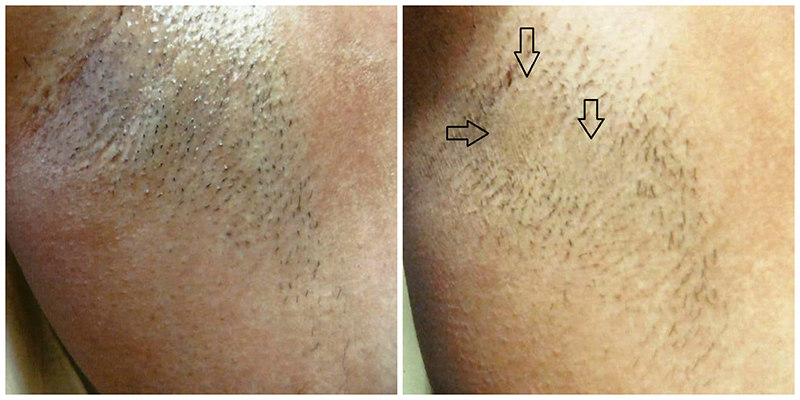 Laser hair removal with The Candela ND:YAG