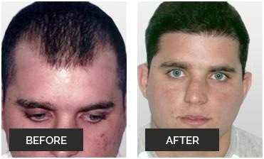 Women And Men Hair Implant In Miami Micro Hair Restoration Transplant