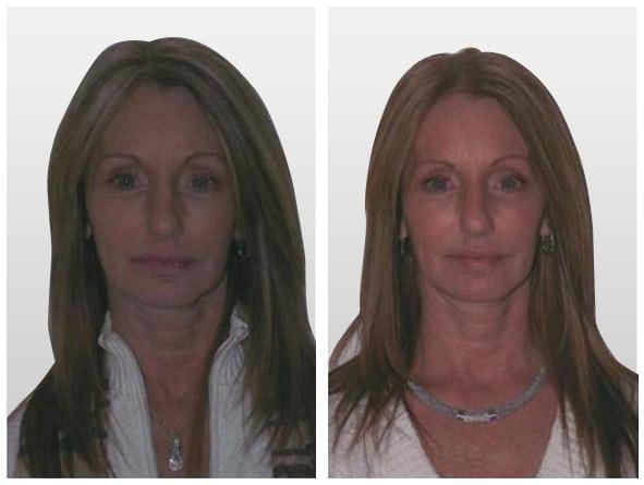 Non-Surgical Face Lift in Miami, Liquid Lift in Miami