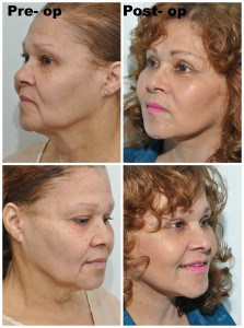 Recovery from face neck and eyelid surgery