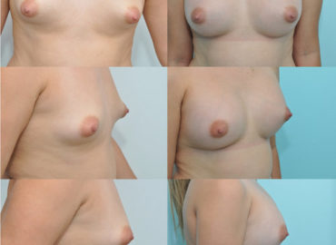 Breast augmentation under local anesthesia