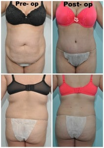 Abdominoplasty combined with liposculpture of the abdomen and back