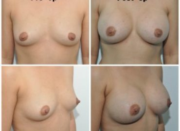 Beautiful results of transumbilical breast augmentation