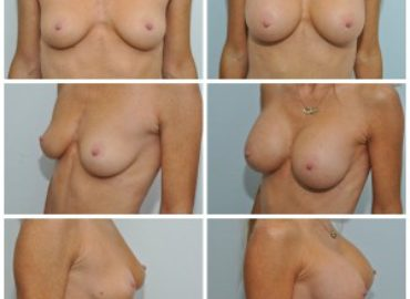 Breast Augmentation WITHOUT scars on your breast!!