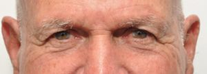 plastic surgery in miami, eyelid surgery in Miami, eye surgery in miami,